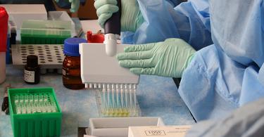Laboratory scientist performing serologic testing